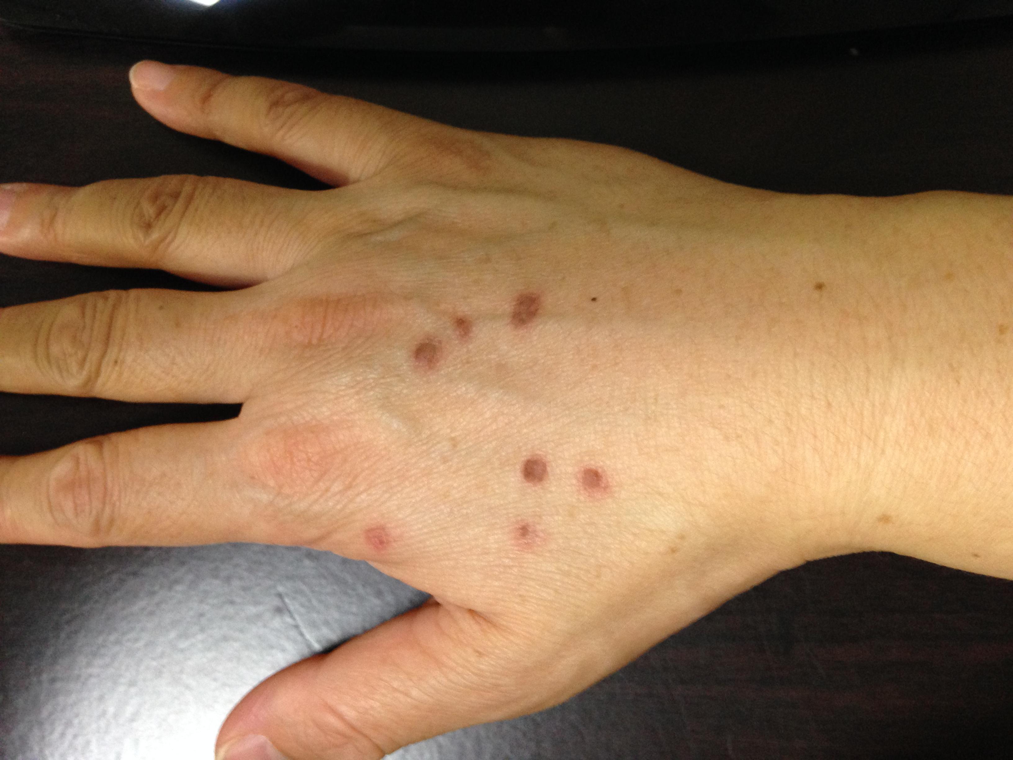 ウイルス性イボ(扁平疣贅)を液体窒素で治療した経過と画像